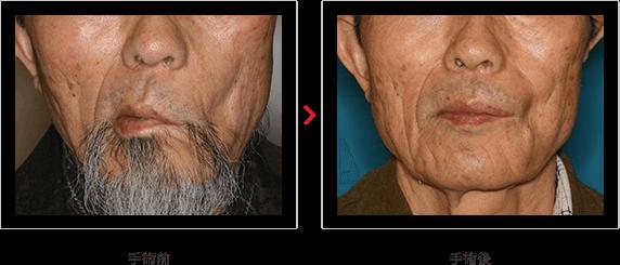 陳旧性顔面麻痺例