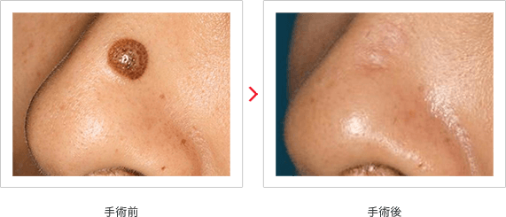 外鼻の色素性母斑