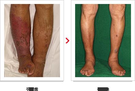 両下肢リンパ浮腫例